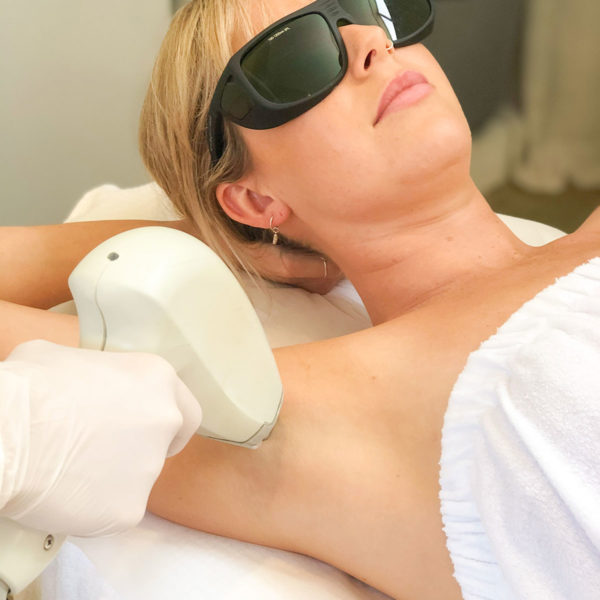 A lady getting laser removal under her arms - QLD, NSW