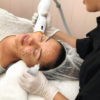 Thermage treatment - QLD, NSW