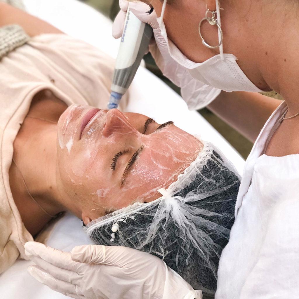Dermapen skin care - QLD, NSW